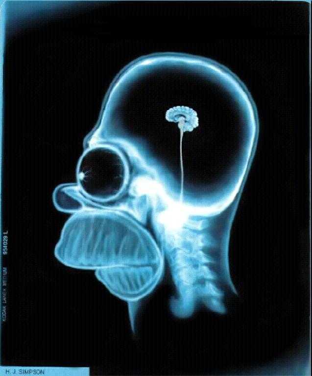 Après un accident sans casque, les séquelles peuvent être sévères ...